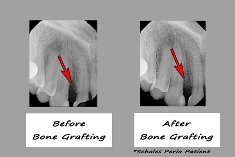 Before and after pictures of bone regeneration by a periodontist in Chandler, AZ.