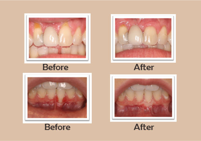Before and after images of cosmetic periodontal surgery by a periodontist in Chandler, AZ.