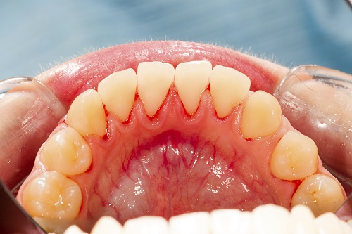 A patients mouth suffering from gum disease.